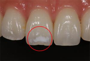 歯の白い斑点