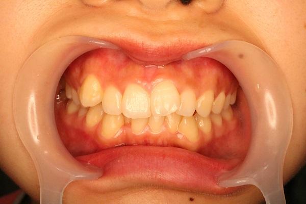 矯正のために歯を抜きました!(濱﨑)