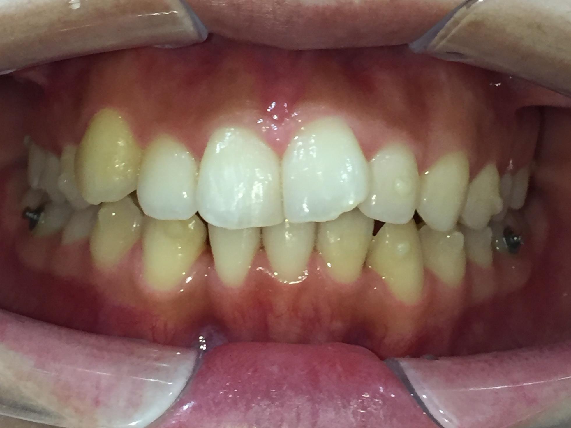 歯並びの状態を比較してみました!(濱﨑)
