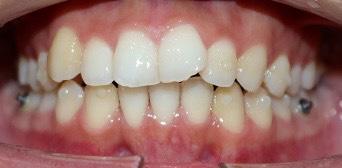 上の歯が広がってきました!(濱﨑)