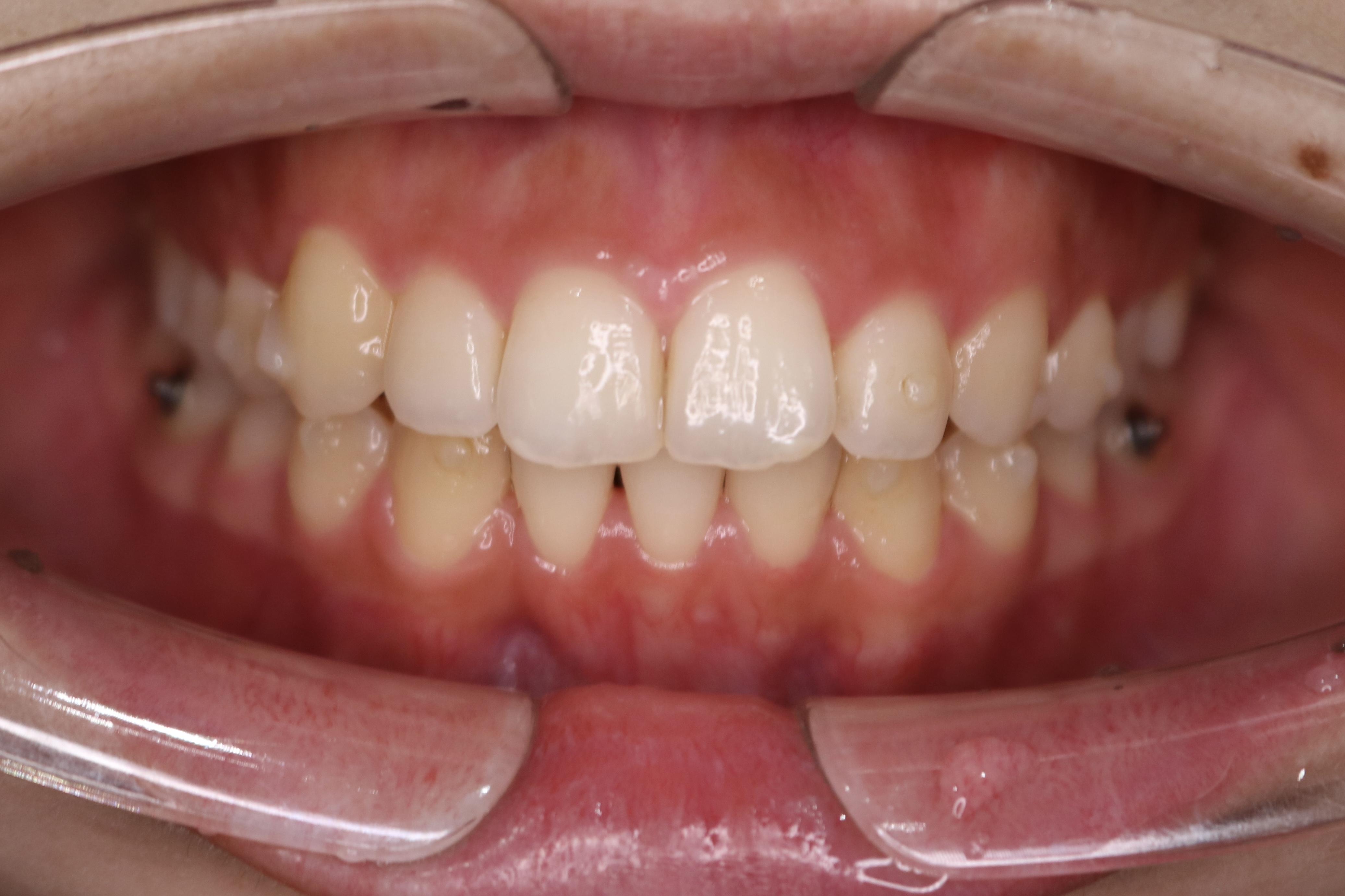 歯並びが綺麗になりました!(濱﨑)